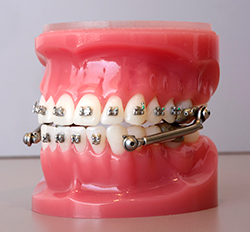 Herbst Appliance Nicolucci Orthodontics Kitchener On